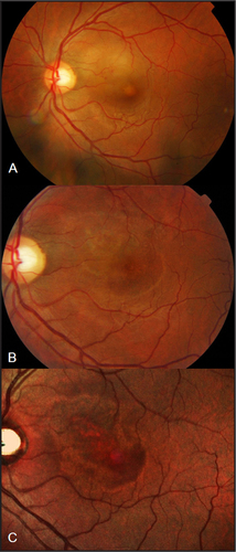 Multimodal Imaging of Exudative Maculopathy Associated With Hand ...